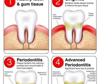 periodontitis-chart-web